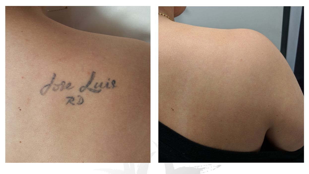 Montreal's #1 Rated 'Laser Tattoo Removal Clinic' Is Where Failed Art Goes To Die