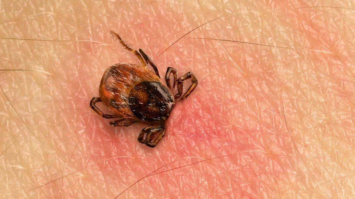 Lyme Disease Skyrocketing In Canada As Tick Population Explodes