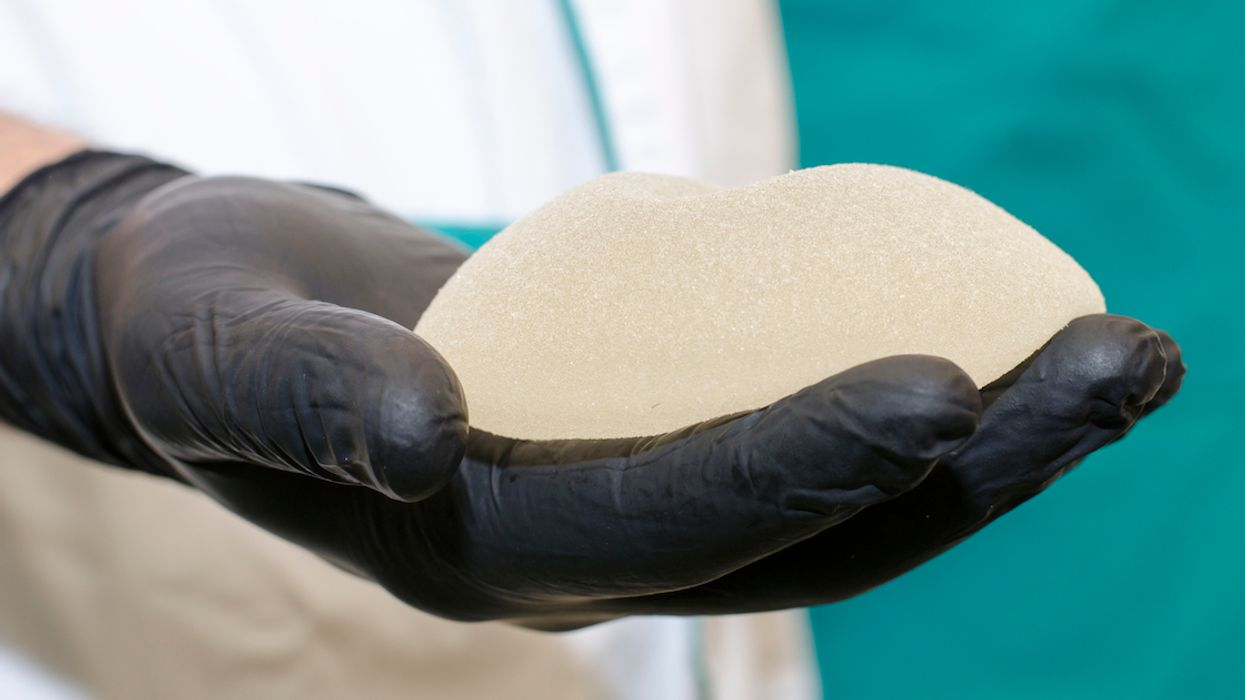 Health Canada Is Warning Of Cancer Risk Associated With Breast Implants After A Concerning Increase In Reported Incidents